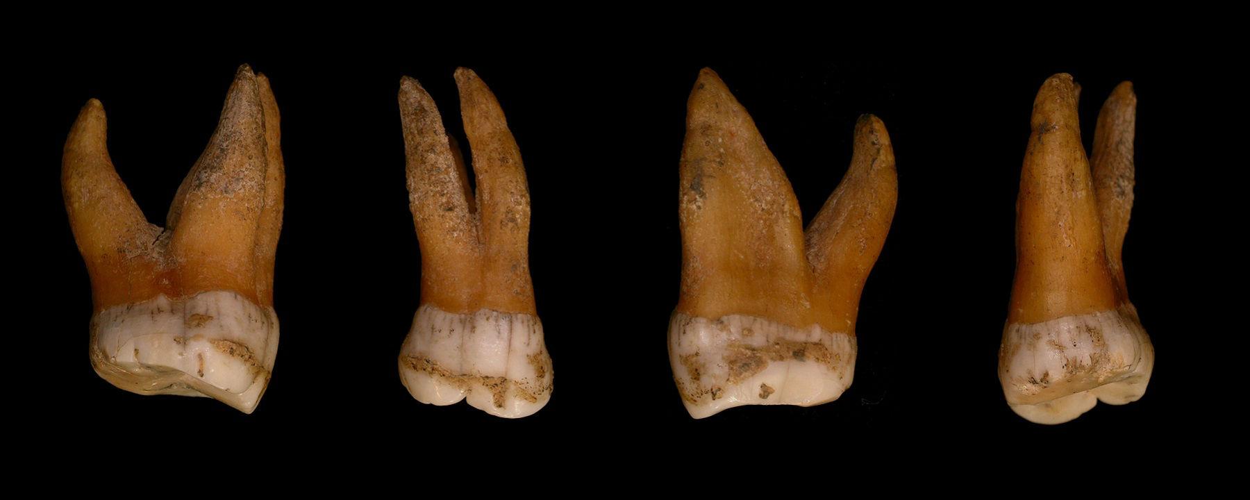 Neanderthal molars
